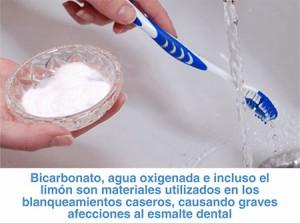 Mitos-del-blanqueamiento-dental-2