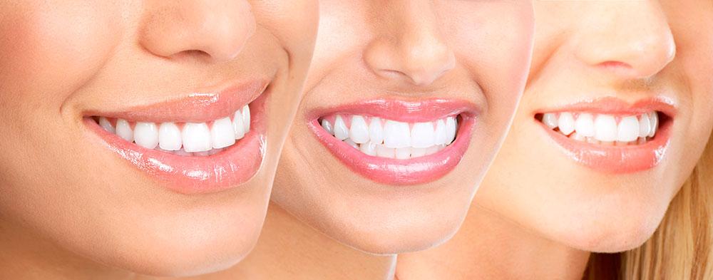 mitos-blanqueamiento-dental