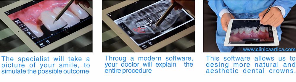 Dental-Implant-software