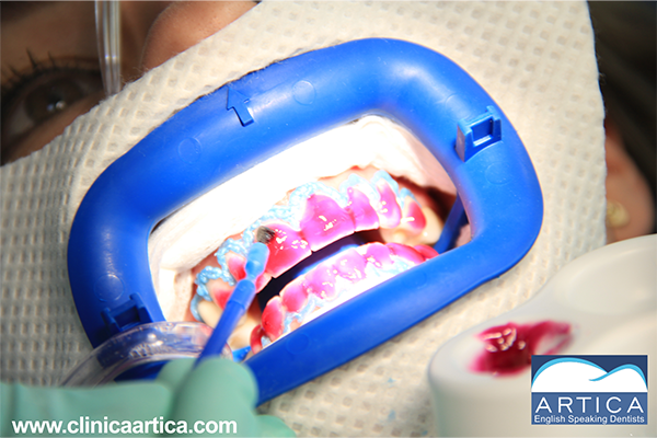 Dental-Whitening-Aplication