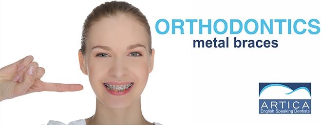Orthodontics-metal-braces-medellin