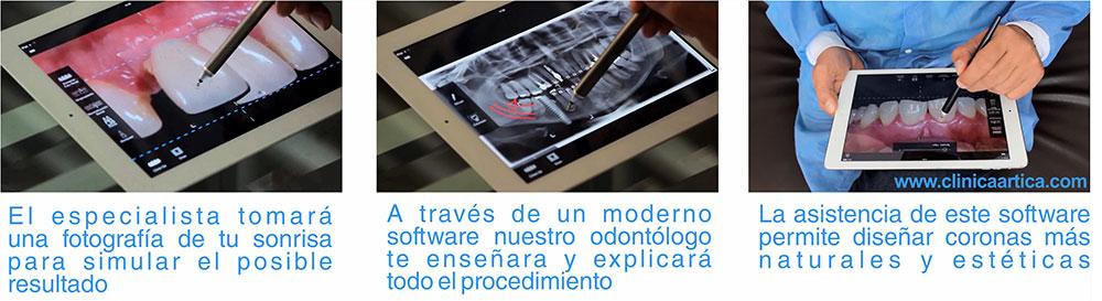 implantes-dentales-medellin-