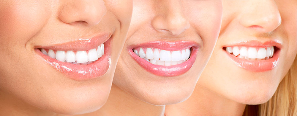mitos-blanqueamiento-dental