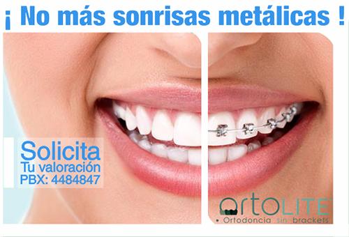 ortodoncia-sin-brackets-medellin