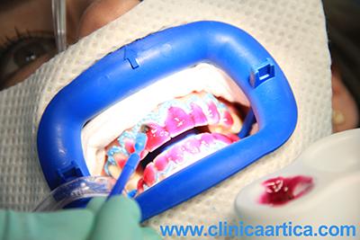 aplicacion-gel-blanqueamiento-dental