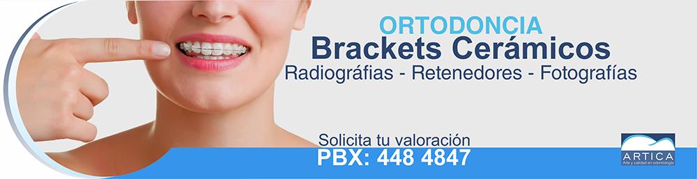 brackets-ceramicos-medellin