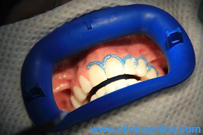 membrana-blanqueamiento-dental-laser