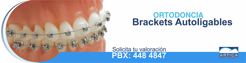 Ortodoncia-autoligables-medellin