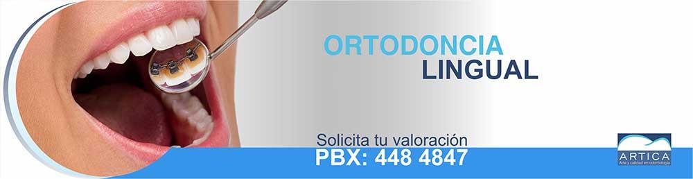Ortodoncia-Lingual-Medellin